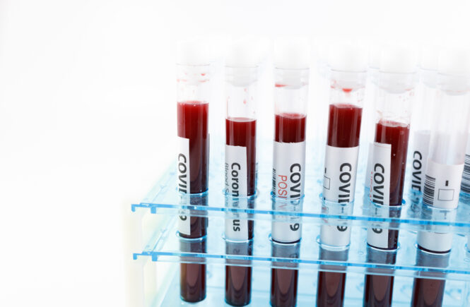 antikroppstest